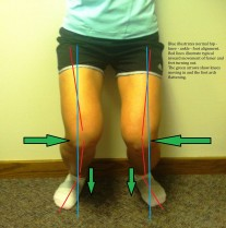 Correcting common movement dysfunctions, such as knee adduction, tibial external rotation, and foot external rotation can go a long way in preventing Achilles tendinopathy.