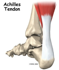 Pain and injury to the Achilles tendon is often thought to be a result of inflammation.